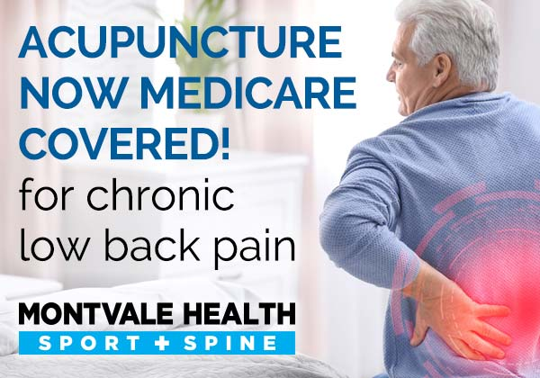 Acupuncture Now Medicare Covered for Chronic Low Back Pain