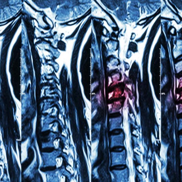 Degenerative Disc Disease Specialists in Montvale, NJ