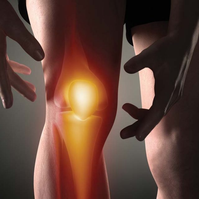 Treatment for Osteoarthritis in Montvale, NJ