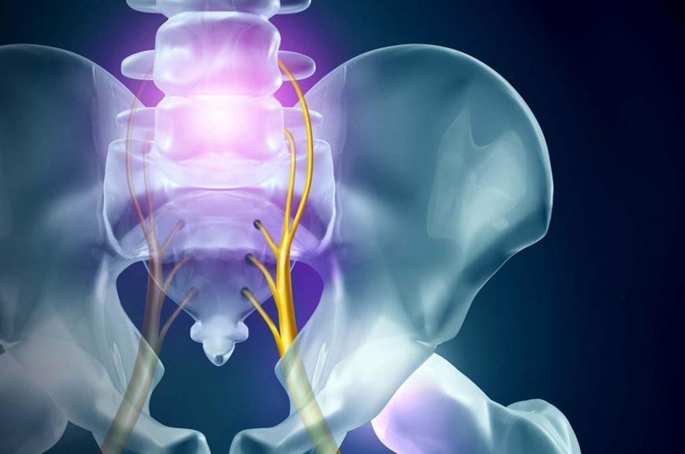 Treatment options for Sciatica